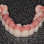 42-implant-supported-ball-retained-overdentures-4