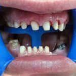 all-ceramic-crowns-and-2-implants-upper-and-lower-3