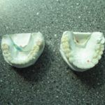 all-ceramic-crowns-and-2-implants-upper-and-lower-4