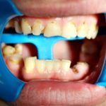 All-ceramic-crowns-bridges-and-implants-1