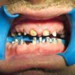 All-ceramic-crowns-bridges-and-metal-root-posts-3