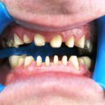 All-ceramic-crowns-on-upper-and-lower-teeth-2