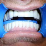 All-on-6-&-All-on-4-Implant-Supported-Fixed-All-ceramic-Bridges-5