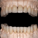 4 Implants and 24 Ceramic Crowns BEFORE