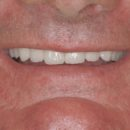 All-on-4 Implant-Supported Fixed Bridge AFTER